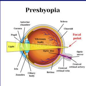 Presbyopia Singapore